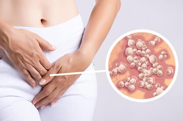 quitar herpes genital, curar herpes, urologo cdmx, clinica ets cdmx